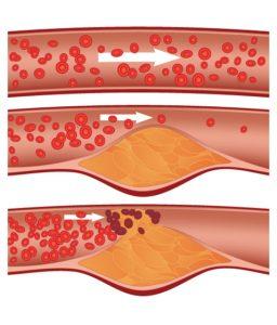 Entstehung-Blutgefaesse