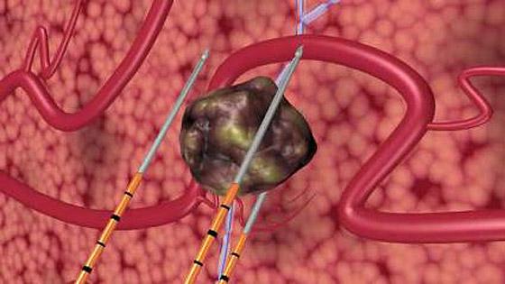 prostatakrebs operation impotenz